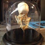 Fetal skeleton in dome.