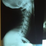 X-ray of my neck
