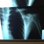 X-ray f my scapula
